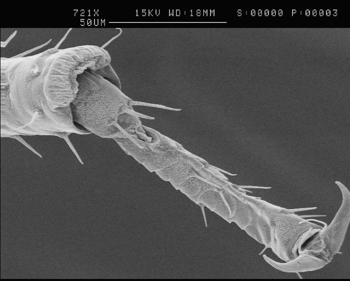 3 -The tip of an aphid leg with a taste sensing hair